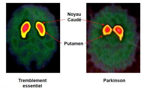 DATscan tremblement essentiel et maladie de Parkinson