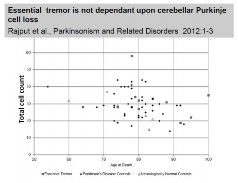 Essential tremor is not dependant upon cerebellar Purkinje cell loss Rajput et al., Parkinsonism and Related Disorders 2012:1-3