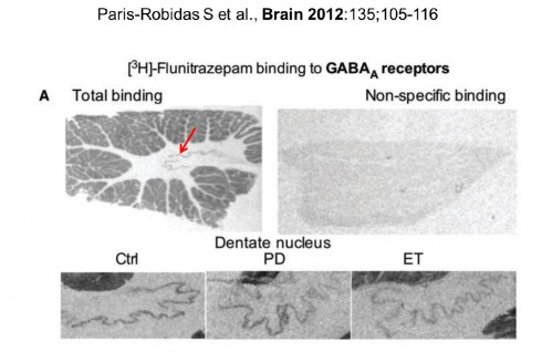 Defective dentate nucleus  BAGA receptors in essential tremor  Paris-Robias S et al., Brain 2012:135; 105-116
