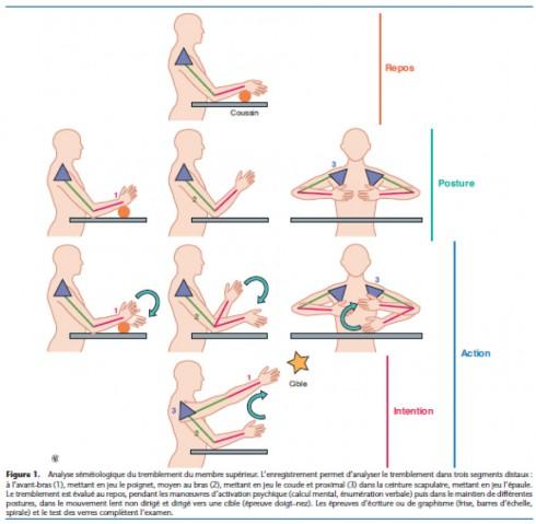 Examen clinique aux membres supérieurs par Emmanuelle Apartis-Bourdieu et Charles-Pierre Jedynak, ECM 2013