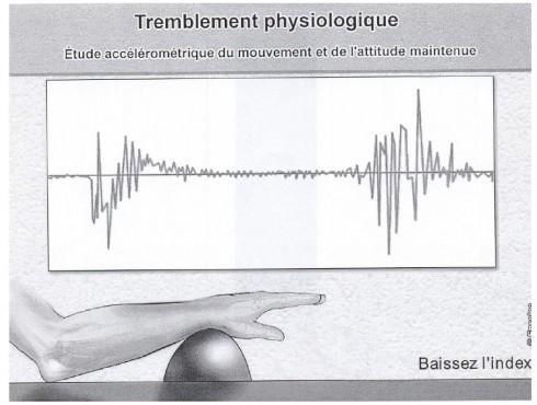 étude accélérométrique du mouvement et de l'attitude du tremblement physiologique